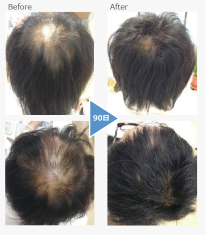 Chronic alopecia